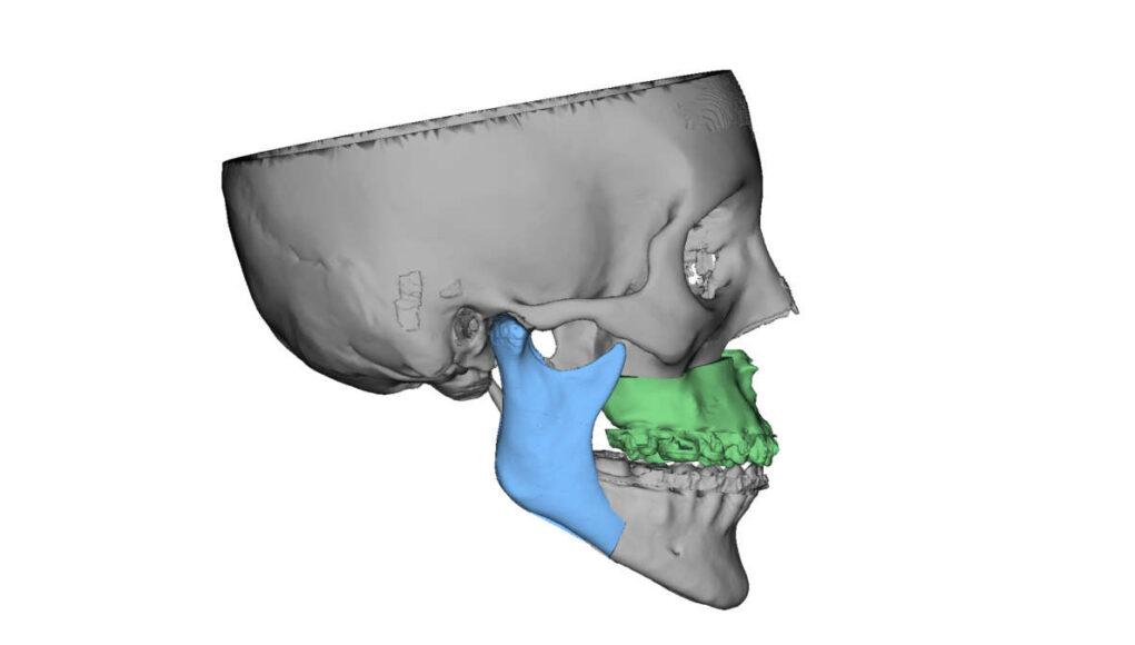 Molinette ricostruzione del volto